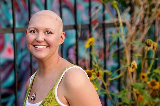 Cancer : quelles solutions contre la chute des cheveux ?